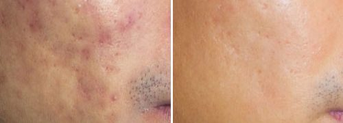 New-Leaf-Spa-Laser-Acne-Treatments-Before-After-2-500x300